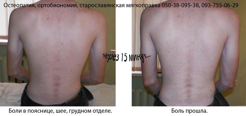 болит спина, лечение спины, остеопатия Киев, Наталья Компанец
