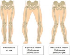 деформация ног